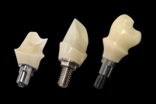 تولید ایمپلنت دندانی در پارک فناوری پردیس/ عرضه ایمپلنتها به بازار تا سال ۹۸